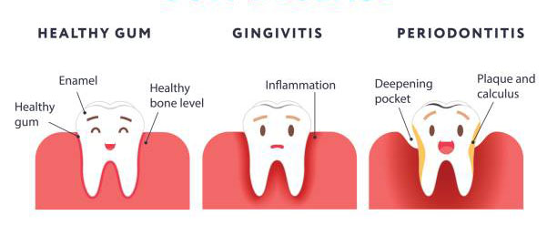 Gingivitis & Periodontitis - Penyakit Gusi - DENTOVA Online